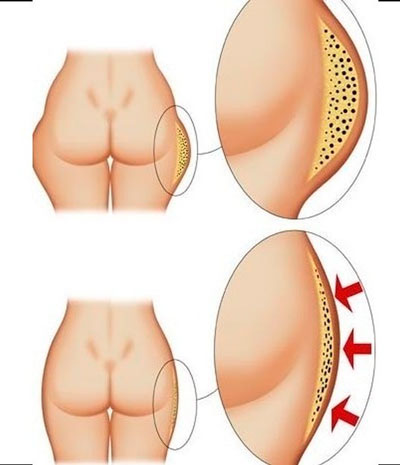 Anti-cellulite wrap at home 1