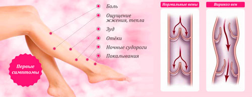 what is varicose veins