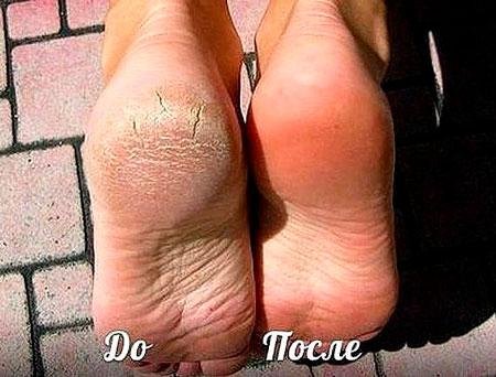 как лечить трещины на ногах