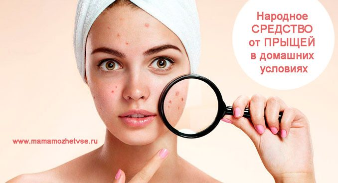 Home remedies for acne at home for women