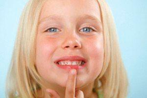 Причины почему сохнут губы у детей