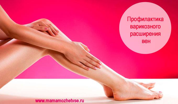 Профилактика варикозного расширения вен на ногах