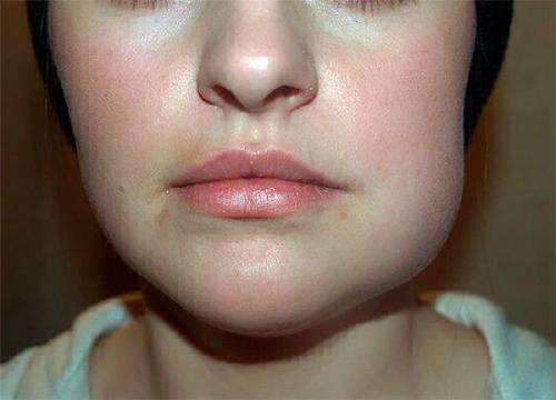 основные причины опухания верхней губы