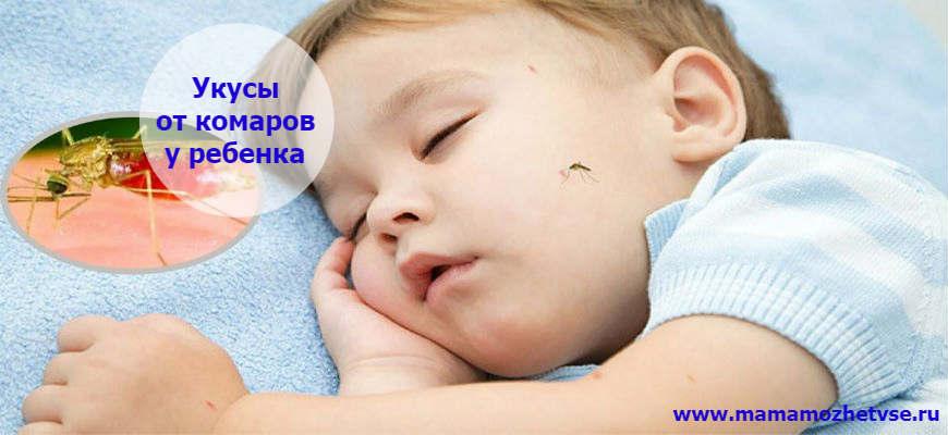 Как лечить укус комара у ребенка