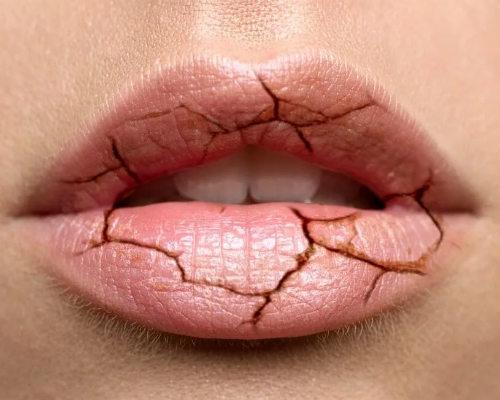 Почему сильно трескаются губы