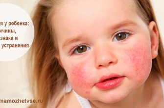 аллергия у ребенка причины, методы устранения 1