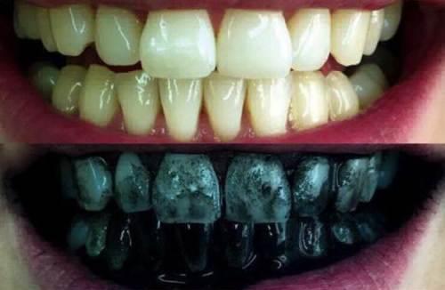 отбелить зубы углем