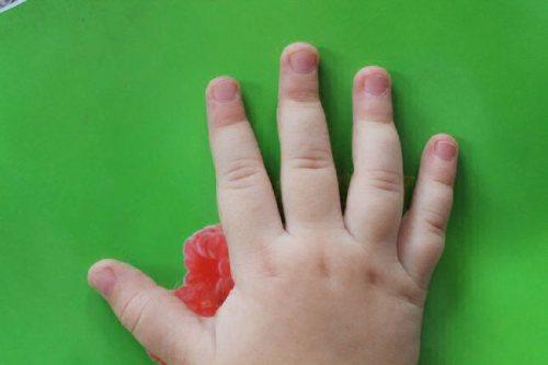у детей слоятся ногти