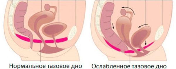ослабление мышц тазового дна после родов