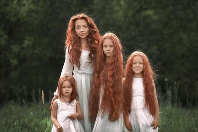 что делать если очень сильно выпадают волосы после родов