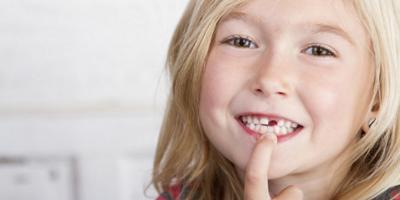 Что делать если шатается молочный зуб у ребенка в 5 лет