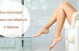 вены на ногах после родов