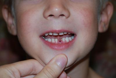 У ребенка выпал первый молочный зуб