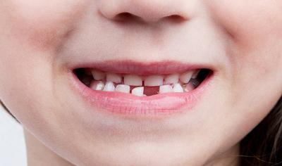 как устроить праздник, когда выпал первый молочный зуб