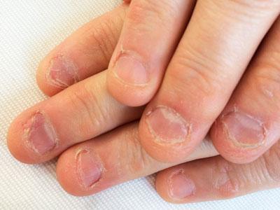 как ребенка в 10 лет отучить грызть ногти