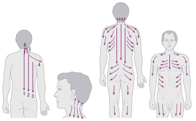 схема массажа тела скребком гуаша