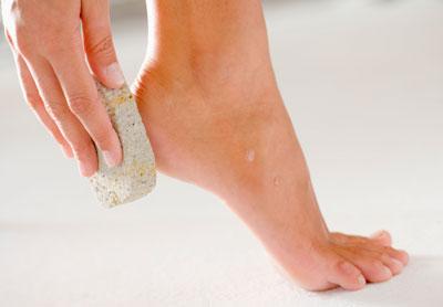 Как очистить пятки от огрубевшей кожи дома 3