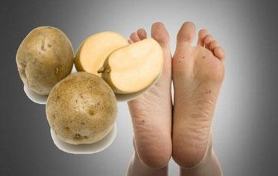 лечение трещин на пятках с помощью картофеля